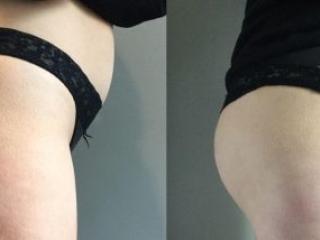image showing brazilian butt lift
