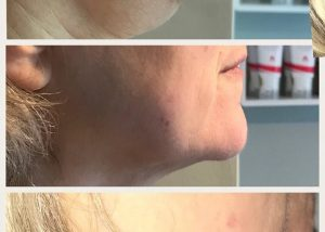 image of double chin reduction