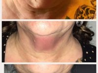 image of double chin fat freeze