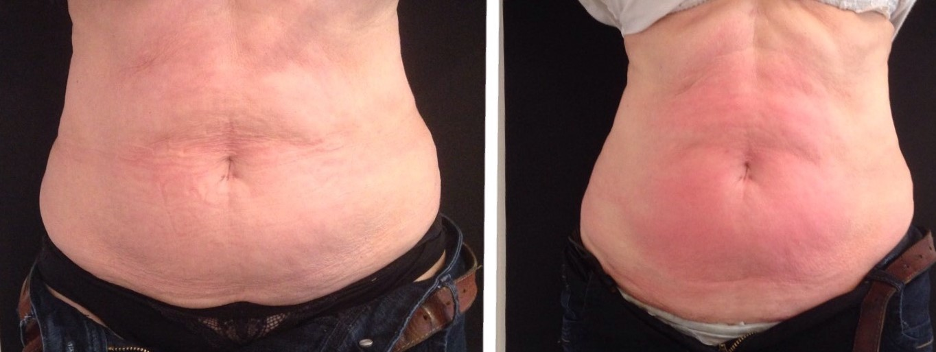 image After fat reduction course