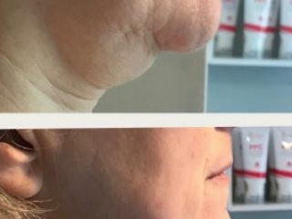 image of double chin lift