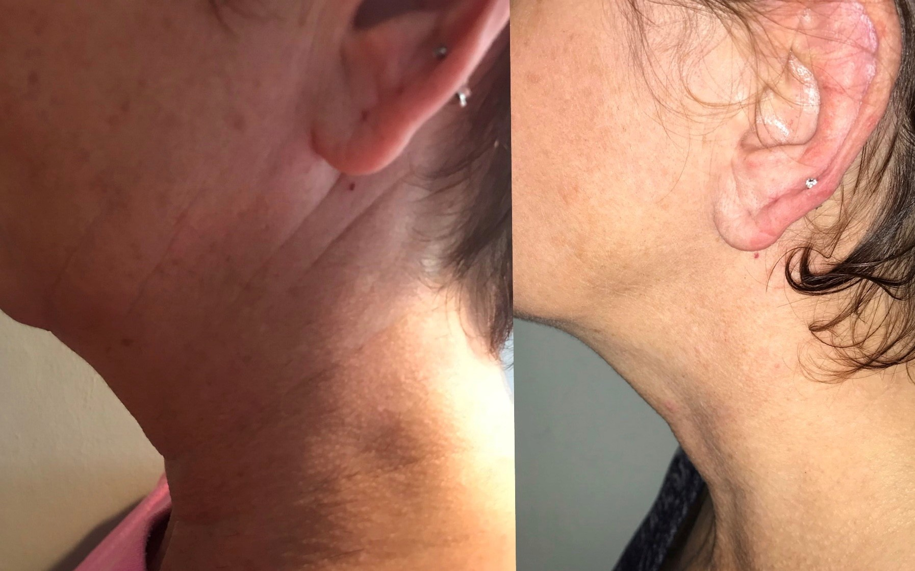 image of double chin treatment